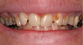 Before Concord Laser Dentistry Procedures