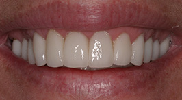 After Concord Laser Dentistry Procedures